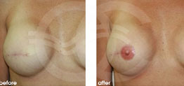 Breast Reconstruction Before and After case 01 Photo. Ocean Clinic Marbella