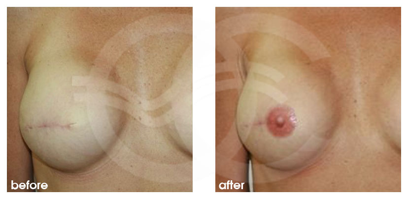 Breast Reconstruction AREOLAR PIGMENTATION ante/post-op profil
