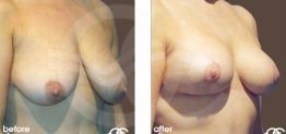 Breast Reconstruction Before and After case 02 Photo. Ocean Clinic Marbella
