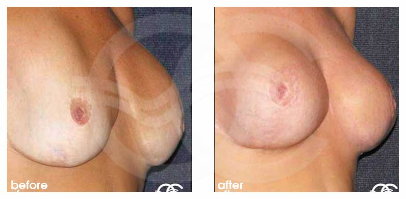 Breast Reconstruction After Breast Reduction. Before After Photo side. Marbella Ocean Clinic