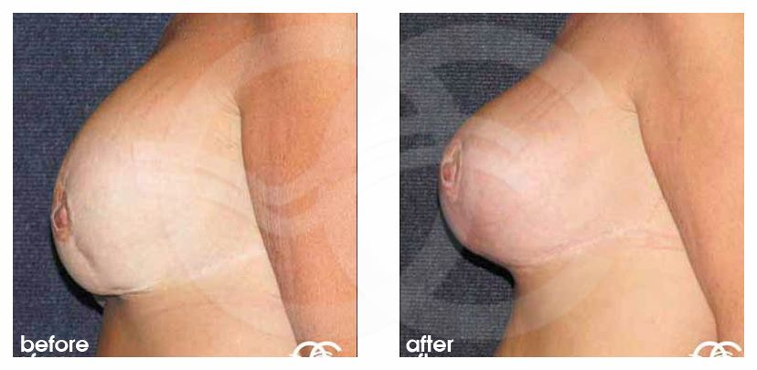 Breast Reconstruction After Breast Reduction. Before After Photo profile. Marbella Ocean Clinic