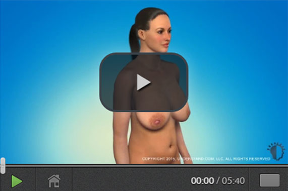 Brustrekonstruktion 3D Animation. Ocean Clinic Marbella