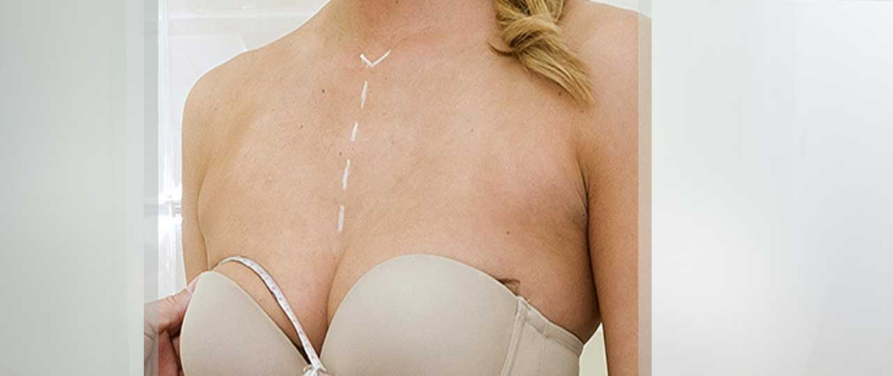 Breast Reduction Before and After Photos. Marbella Ocean Clinic