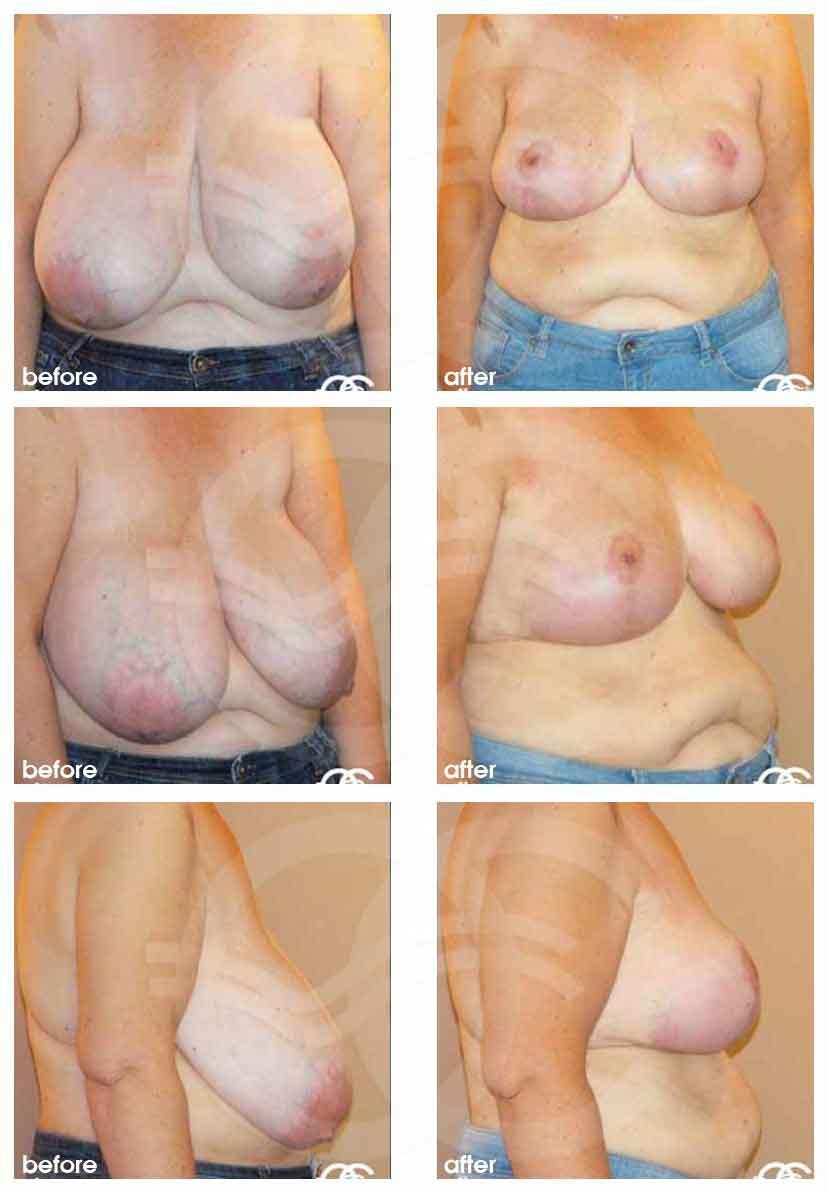 уменьшение груди Марбелья Испания Ocean Clinic
