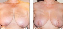 Breast Reduction Before After Photo Ocean Clinic case 03 Marbella