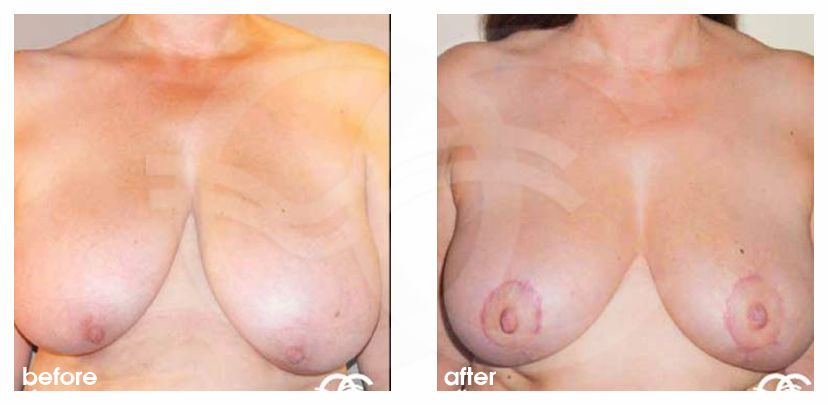 Breast Reduction Before After breast liposuction Photo frontal Marbella Ocean Clinic