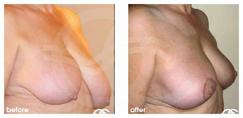 Breast Reduction BREAST LIPOSUCTION ante/post-op lateral