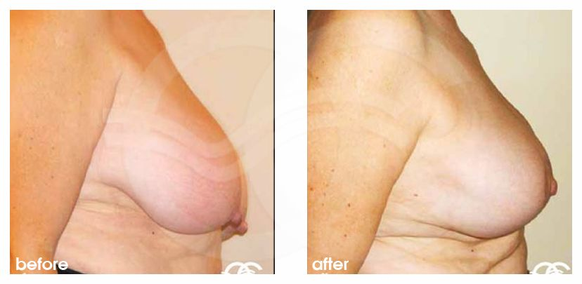 Breast Reduction BREAST LIPOSUCTION before after perfil