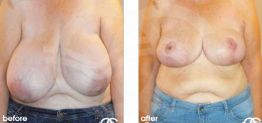 Breast Reduction Before After Photo Ocean Clinic case 04 Marbella