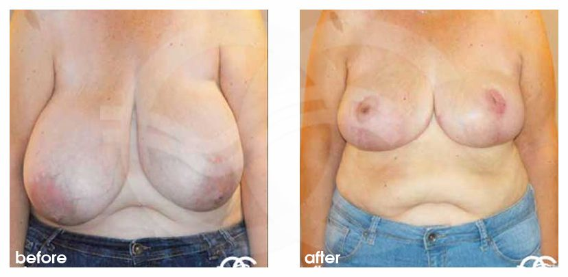 Breast Reduction Before After Volume reduction Photo frontal Marbella Ocean Clinic