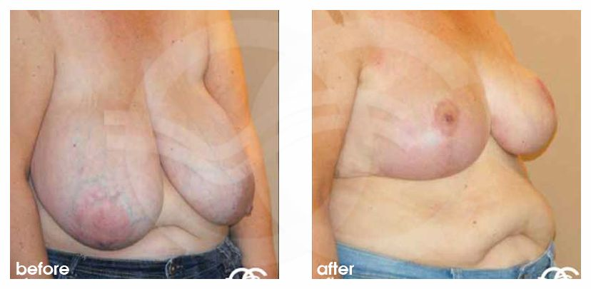 Breast Reduction Before After Volume reduction Photo side Marbella Ocean Clinic