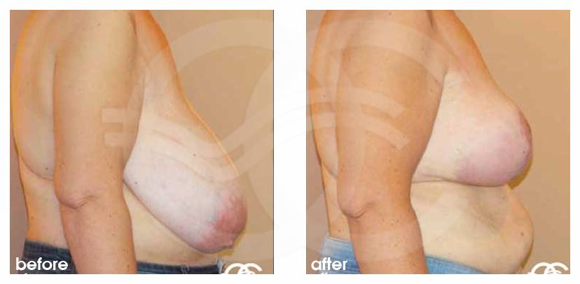 Breast Reduction Before After Volume reduction Photo profile Marbella Ocean Clinic