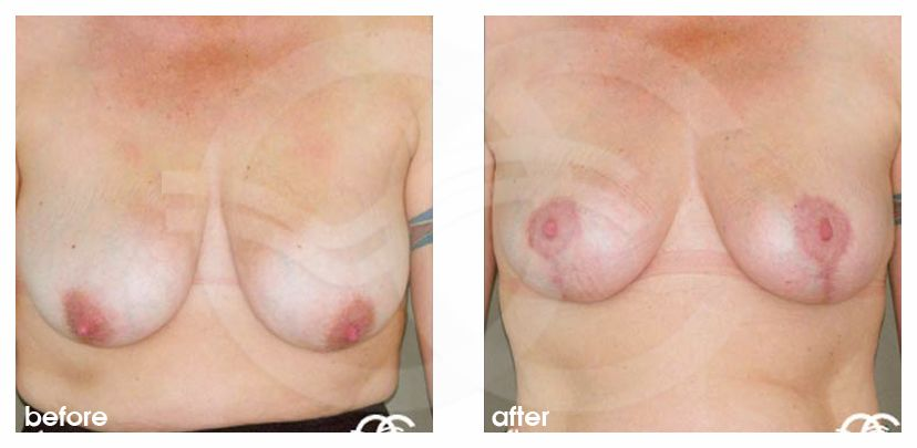 Breast Reduction Before After Lejour Technique Photo frontal Marbella Ocean Clinic