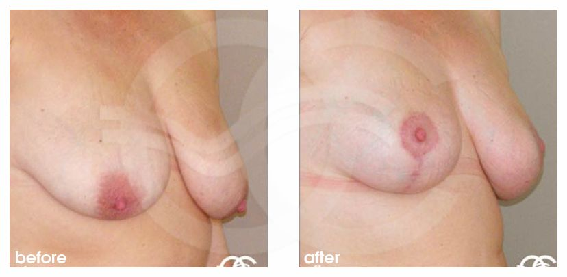 Breast Reduction Before After Lejour Technique Photo side Marbella Ocean Clinic
