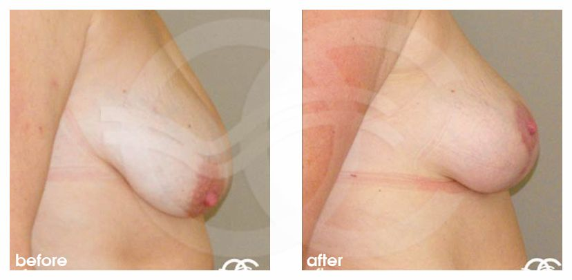 Breast Reduction REDUCTION MAMMOPLASTY before after perfil