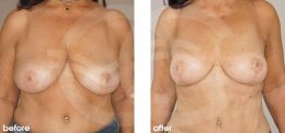 Breast Reduction Before After Photo Ocean Clinic case 06 Marbella