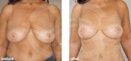 Brustverkleinerung Vorher Nachher Bilder Fall 06. Marbella Ocean Clinic