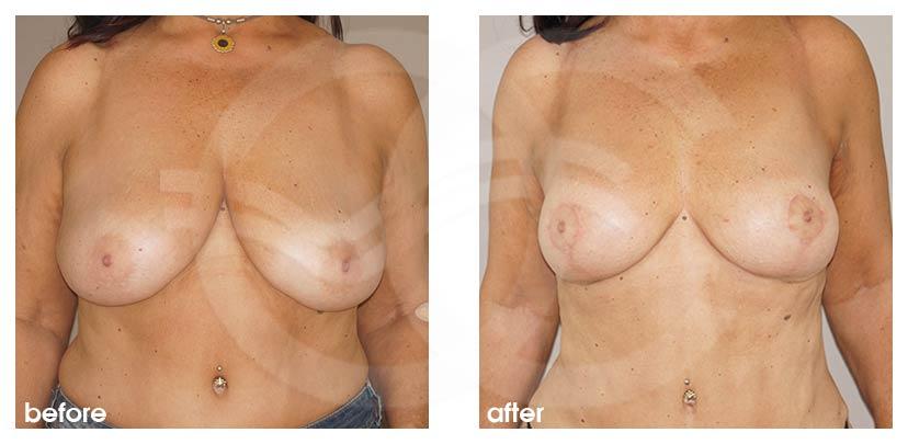 Brustverkleinerung Vorher Nachher Hall-Findlay 6 Monate Postoperativ Foto vorne. Marbella Ocean Clinic