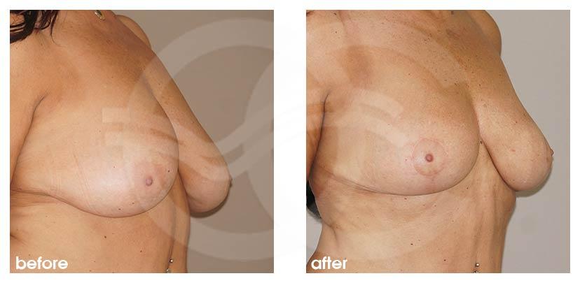 Brustverkleinerung Vorher Nachher Hall-Findlay 6 Monate Postoperativ Foto seitlich. Marbella Ocean Clinic