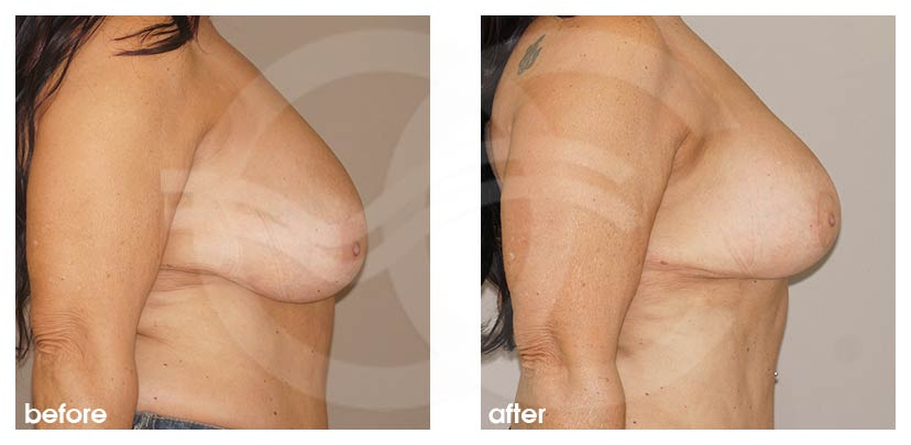 Brustverkleinerung Vorher Nachher Hall-Findlay 6 Monate Postoperativ Foto profil. Marbella Ocean Clinic