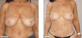 Breast Reduction Before After Photo Ocean Clinic case 07 Marbella