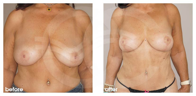 Breast Reduction Before After Reduction Mammoplasty Photo frontal Marbella Ocean Clinic