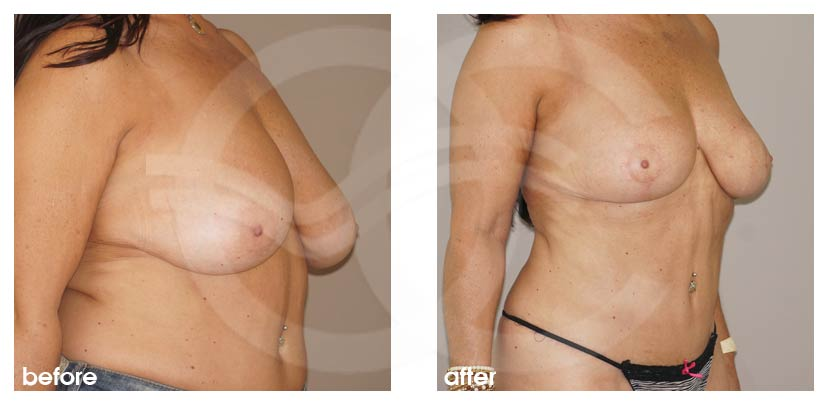 Breast Reduction Before After Reduction Mammoplasty Photo side Marbella Ocean Clinic