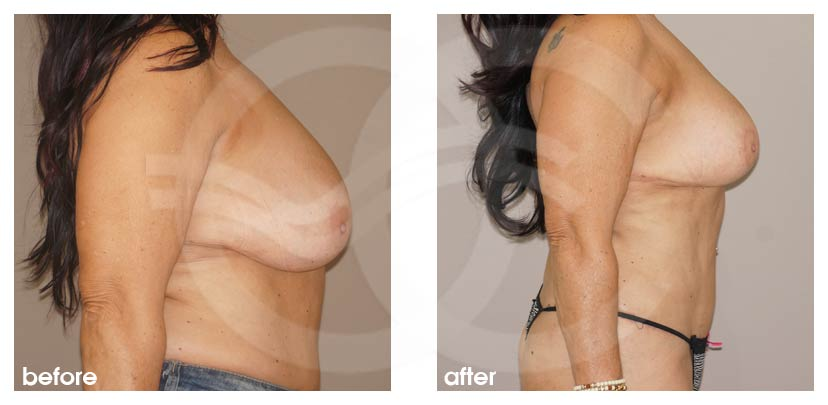Breast Reduction Before After Reduction Mammoplasty Photo profile Marbella Ocean Clinic