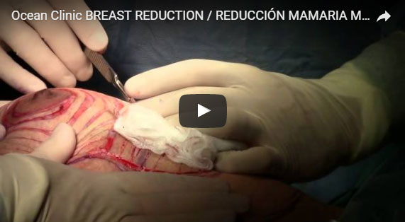 Breast Reduction Video Surgery Mammoplasty Ocean Clinic Marbella