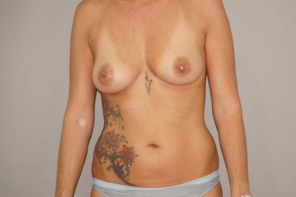 Breast Augmentation with Fat Transfer before forntal