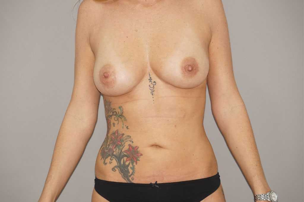 Lipofilling des seins 1 after frontal