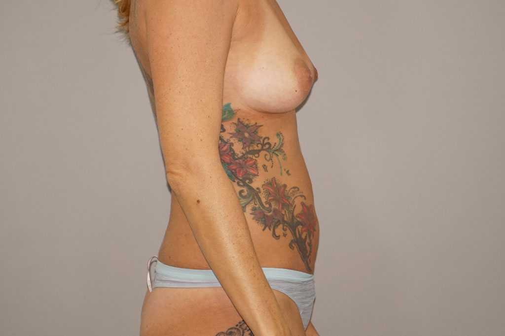 Aumento de pechos con injerto de grasa ante-op lateral