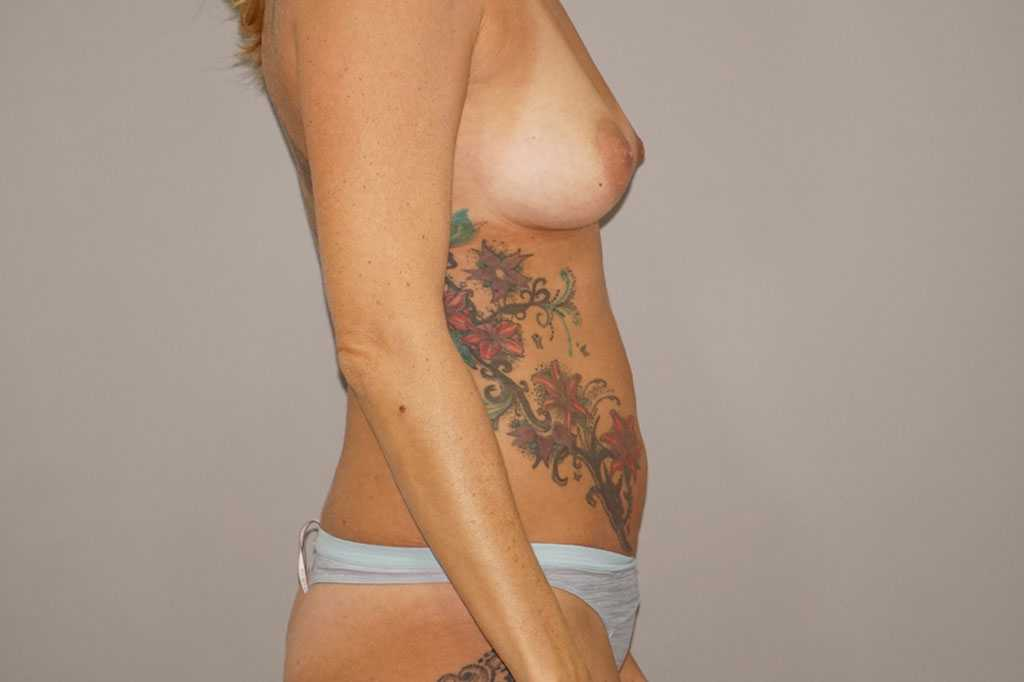 Lipofilling des seins 1 ante-op lateral