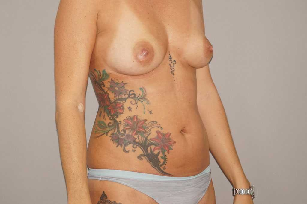 Breast Augmentation with Fat Transfer before profile