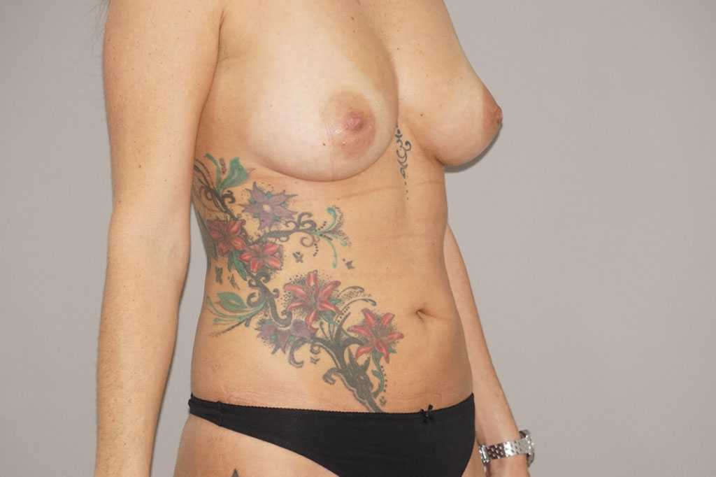 Breast Augmentation with Fat Transfer after profile