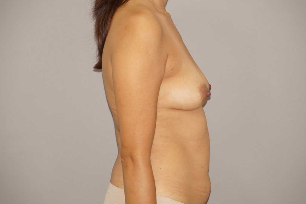 Breast Augmentation Fat Grafing before side
