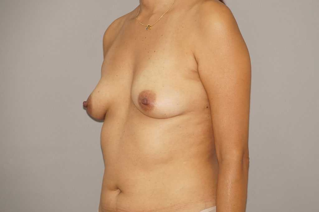 Breast Augmentation Fat Grafing before profile