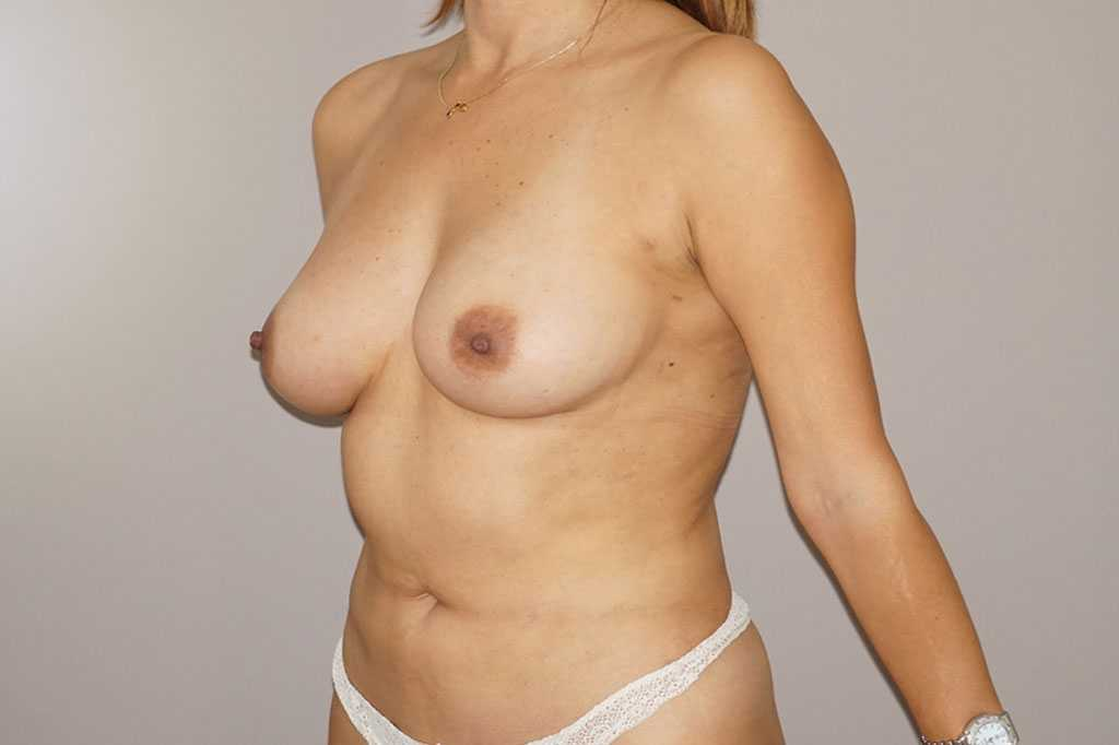 Breast Augmentation Fat Grafing after profile