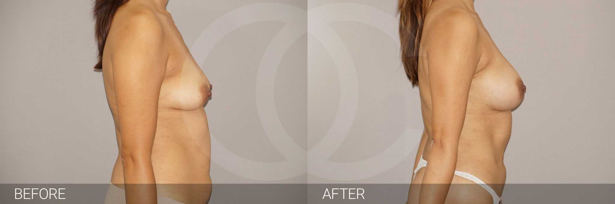 Breast Augmentation Fat Grafing ante/post-op II
