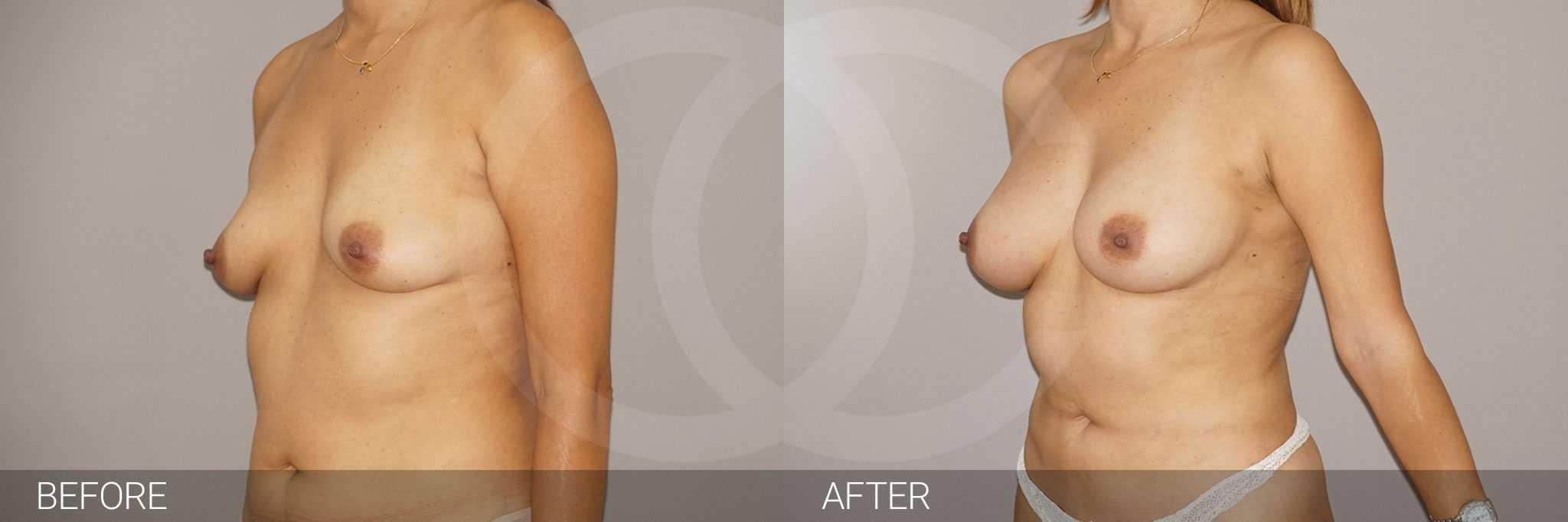 Breast Augmentation Fat Grafing ante/post-op III