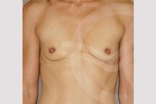 Breast Augmentation 350cc High Profile before forntal