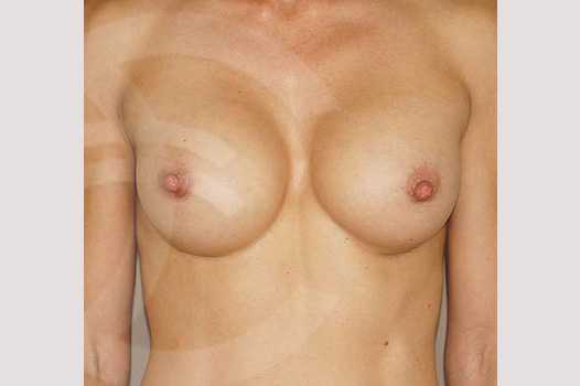 Breast Augmentation 350cc High Profile after frontal