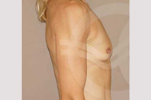 Breast Augmentation 350cc High Profile before profile