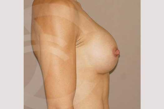 Breast Augmentation 350cc High Profile after profile