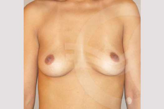 Breast Augmentation 210cc Anatomic before forntal