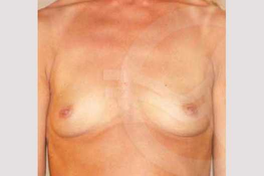 Breast Augmentation 280cc High Profile before forntal