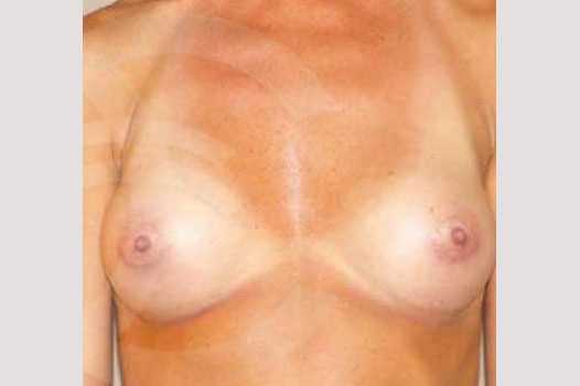 Breast Augmentation 280cc High Profile after frontal