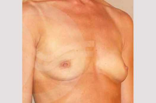 Breast Augmentation 280cc High Profile before side