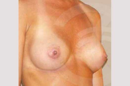 Breast Augmentation 280cc High Profile after side
