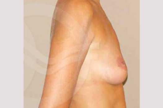Breast Augmentation 325cc High Profile before profile